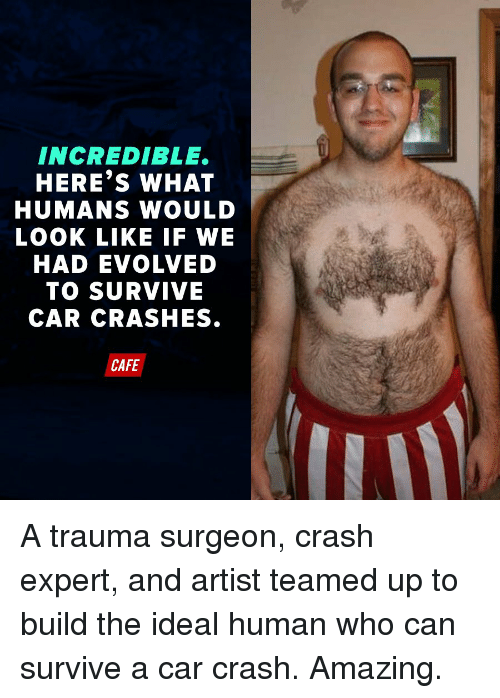 Only Human Who Can Survive Car Accident