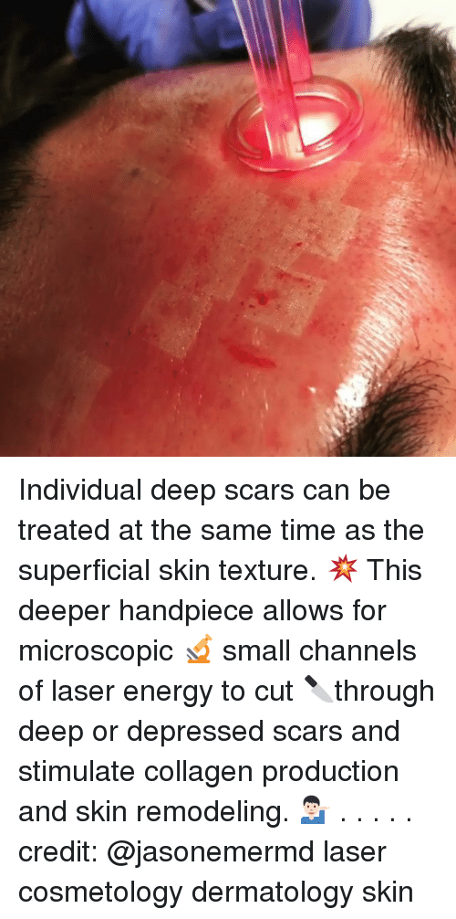 collagen: Individual deep scars can be treated at the same time as the superficial skin texture. 💥 This deeper handpiece allows for microscopic 🔬 small channels of laser energy to cut 🔪through deep or depressed scars and stimulate collagen production and skin remodeling. 💁🏻♂️ . . . . . credit: @jasonemermd laser cosmetology dermatology skin