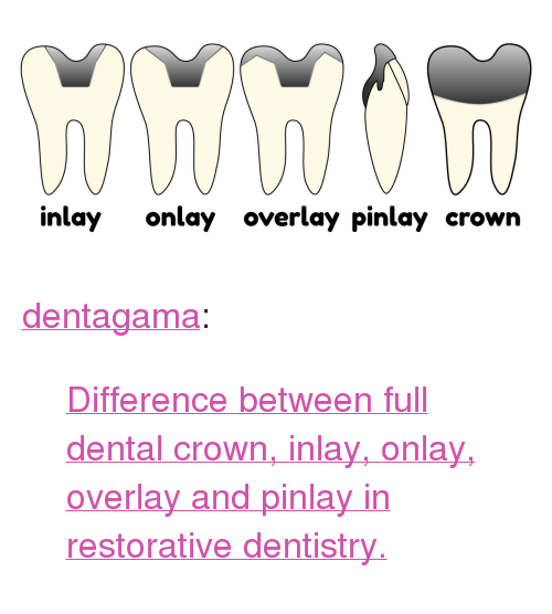 """Overlay: inlay onlay overlay pinlay crown <p><a href=""""http://dentagama.tumblr.com/post/160156741379/difference-between-full-dental-crown-inlay"""" class=""""tumblr_blog"""">dentagama</a>:</p><blockquote><p><a href=""""https://dentagama.com/news/what-is-the-difference-between-inlay-onlay-overlay-and-pinlay"""">Difference between full dental crown, inlay, onlay, overlay and pinlay in restorative dentistry.</a></p></blockquote>"""
