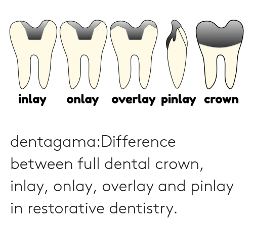 Overlay: inlay onlay overlay pinlay crown dentagama:Difference between full dental crown, inlay, onlay, overlay and pinlay in restorative dentistry.