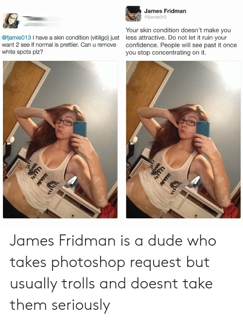 trolls: James Fridman  @fjamie013  @fjamie013 I have a skin condition (vitiligo) just  want 2 see if normal is prettier. Can u remove  white spots plz?  Your skin condition doesn't make you  less attractive. Do not let it ruin your  confidence. People will see past it once  you stop concentrating on it. James Fridman is a dude who takes photoshop request but usually trolls and doesnt take them seriously