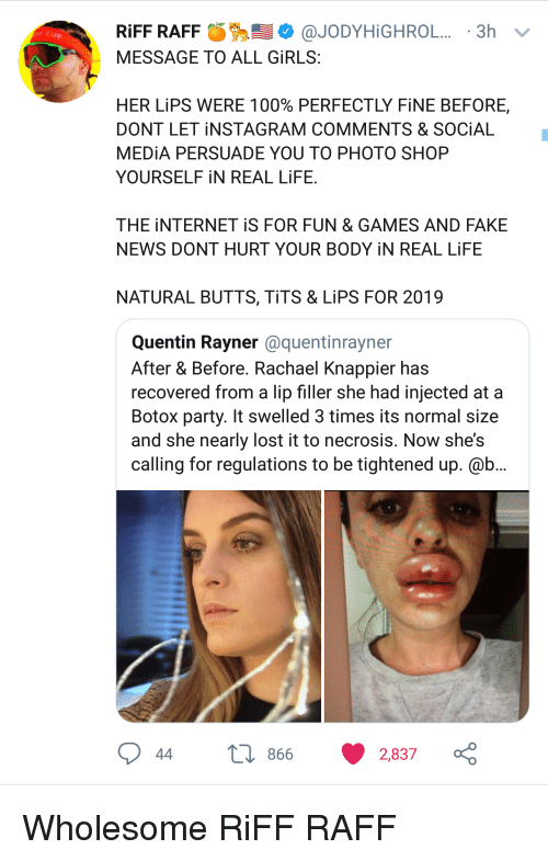 Lip Filler: @JODYH İGHROL.. . 3h  RIFF RAFF  MESSAGE TO ALL GİRLS  FF RAFF  HER LİPS WERE 100% PERFECTLY FİNE BEFORE,  DONT LET İNSTAGRAM COMMENTS & SOCIAL  MEDIA PERSUADE YOU TO PHOTO SHOP  YOURSELF İN REAL LİFE  THE İNTERNET iS FOR FUN & GAMES AND FAKE  NEWS DONT HURT YOUR BODY İN REAL LIFE  NATURAL BUTTS, TİTS & LİPS FOR 2019  Quentin Rayner @quentinrayner  After & Before. Rachael Knappier has  recovered from a lip filler she had injected at a  Botox party. It swelled 3 times its normal size  and she nearly lost it to necrosis. Now shes  calling for regulations to be tightened up. @b  866  2,837