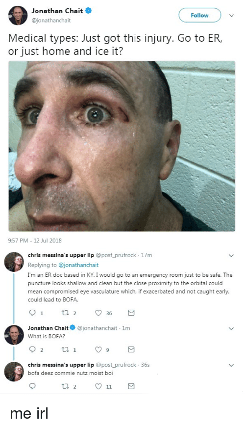 Moist: Jonathan Chait  @jonathanchait  Follow  Medical types: Just got this injury. Go to ER,  or just home and ice it?  9:57 PM 12 Jul 2018  chris messina's upper lip @post_prufrock 17m  Replying to @jonathanchait  I'm an ER doc based in KY. I would go to an emergency room just to be safe. The  puncture looks shallow and clean but the close proximity to the orbital could  mean compromised eye vasculature which, if exacerbated and not caught early,  could lead to BOFA  Jonathan Chait@jonathanchait 1m  What is BOFA?  chris messina's upper lip @post prufrock 36s  bofa deez commie nutz moist boi me irl
