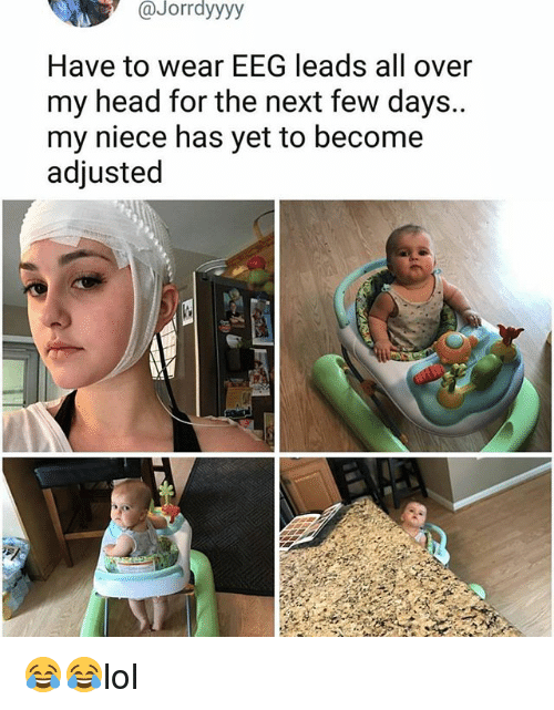 Head, Memes, and 🤖: Jorrdyyyy  Have to wear EEG leads all over  my head for the next few days..  my niece has yet to become  adjusted 😂😂lol
