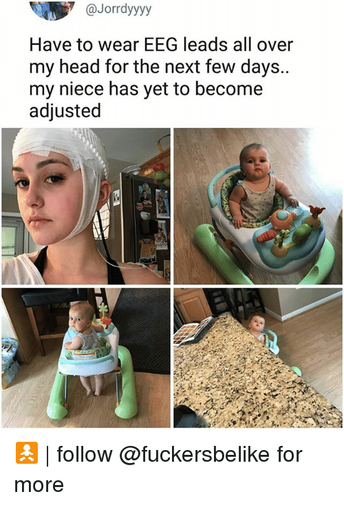 Head, Memes, and 🤖: @Jorrdyyyyy  Have to wear EEG leads all over  my head for the next few days..  my niece has yet to become  adjusted 🚼 | follow @fuckersbelike for more