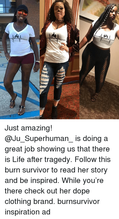 Dope, Life, and Memes: Just amazing! @Ju_Superhuman_ is doing a great job showing us that there is Life after tragedy. Follow this burn survivor to read her story and be inspired. While you're there check out her dope clothing brand. burnsurvivor inspiration ad