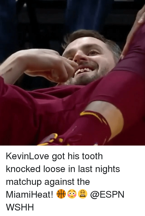 Espn, Memes, and Wshh: KevinLove got his tooth knocked loose in last nights matchup against the MiamiHeat! 🏀😳😩 @ESPN WSHH