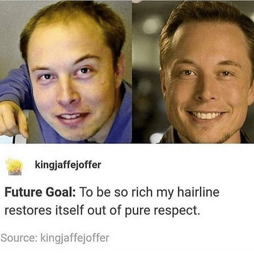 Hairline: kingjaffejoffer  Future Goal: To be so rich my hairline  restores itself out of pure respect.  Source: kingjaffejoffer