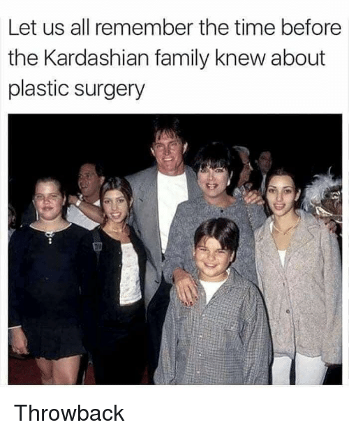 plastic surgery: Let us all remember the time before  the Kardashian family knew about  plastic surgery Throwback