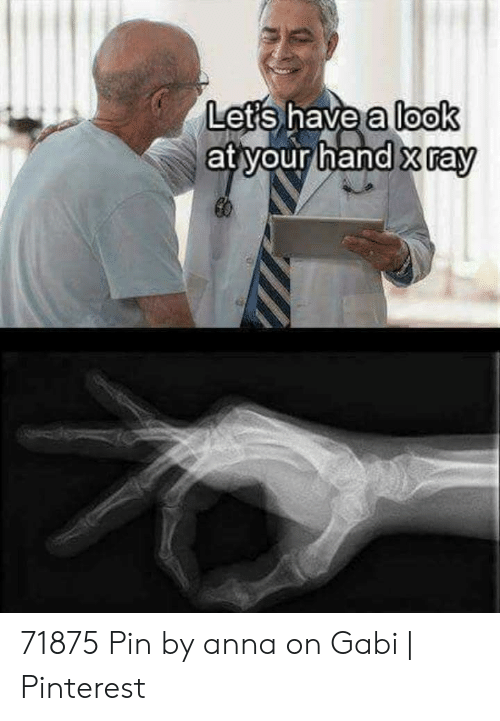 Finger Circle Game: Lets.nave allooK  at your hand xray 71875 Pin by anna on Gabi | Pinterest