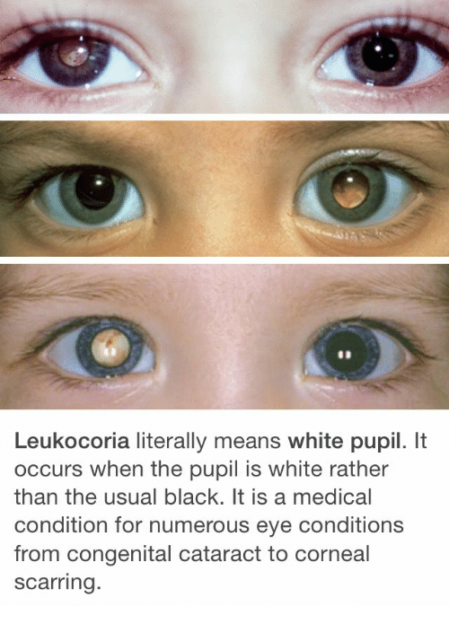 Pupil: Leukocoria literally means white pupil. It  occurs when the pupil is white rather  than the usual black. It is a medical  condition for numerous eye conditions  from congenital cataract to corneal  scarring.