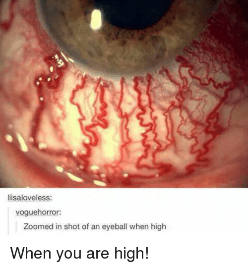 You Are High: liisaloveless:  voguehorror:  Zoomed in shot of an eyeball when high When you are high!