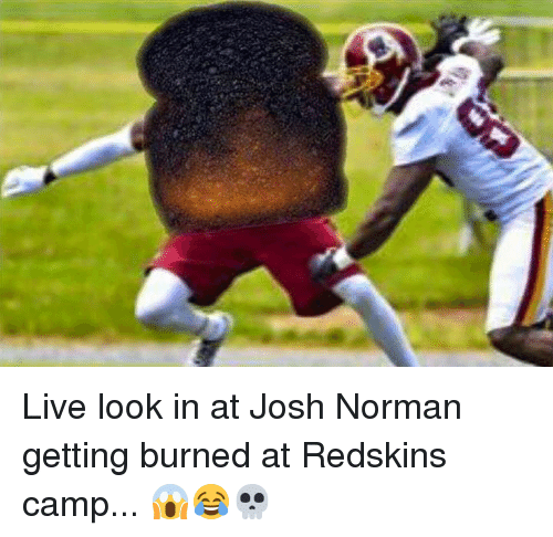 Josh Norman, Washington Redskins, and Live: Live look in at Josh Norman getting burned at Redskins camp... 😱😂💀