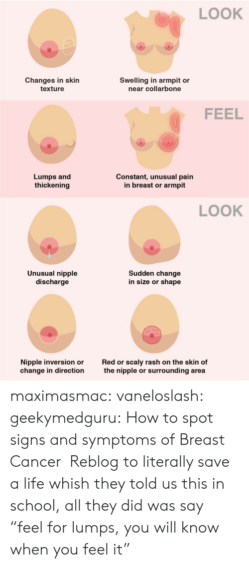 "breast: LOOK  Changes in skin  Swelling in armpit or  near collarbone  texture  FEEL  Lumps and  thickening  Constant, unusual pain  in breast or  armpit  LOOK  Unusual nipple  discharge  Sudden change  in size or shape  scaly rash on the skin of  surrounding area  Nipple inversion or  change in direction  Red or  the nipple  or maximasmac: vaneloslash:  geekymedguru: How to spot signs and symptoms of Breast Cancer   Reblog to literally save a life   whish they told us this in school, all they did was say ""feel for lumps, you will know when you feel it"""