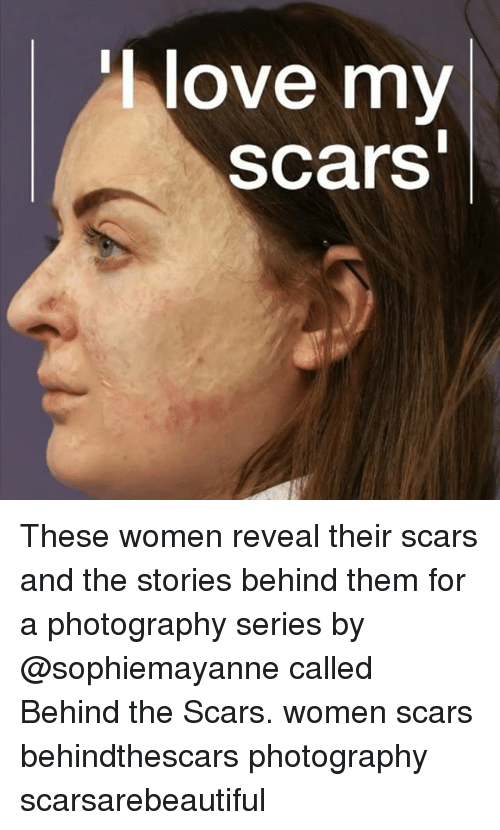 Love, Memes, and Photography: love my  scars These women reveal their scars and the stories behind them for a photography series by @sophiemayanne called Behind the Scars. women scars behindthescars photography scarsarebeautiful