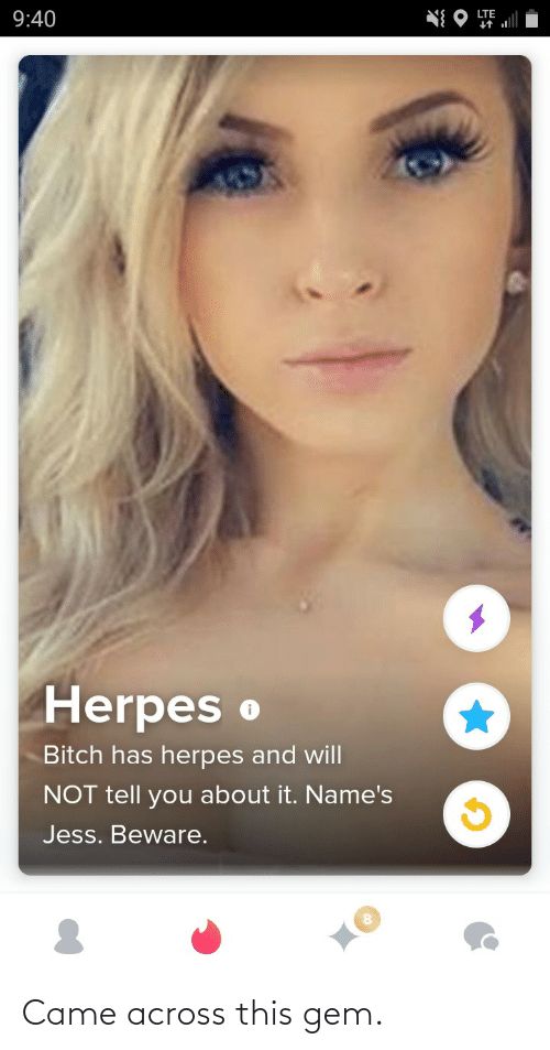 jess: LTE  9:40  Herpes o  Bitch has herpes and will  NOT tell you about it. Name's  Jess. Beware. Came across this gem.