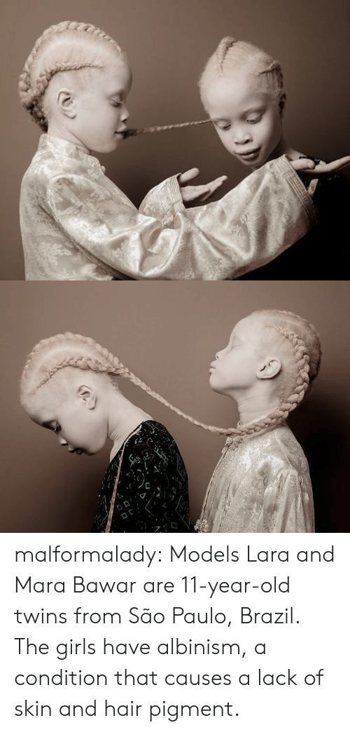 Sao Paulo: malformalady:  Models Lara and Mara Bawar are 11-year-old twins from São Paulo, Brazil. The girls have albinism, a  condition that causes a lack of skin and hair pigment.