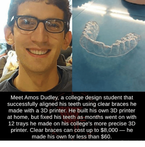 3d printers: Meet Amos Dudley, a college design student that  successfully aligned his teeth using clear braces he  made with a 3D printer. He built his own 3D printer  at home, but fixed his teeth as months went on with  12 trays he made on his college's more precise 3D  printer. Clear braces can cost up to $8,000- he  made his own for less than $60.
