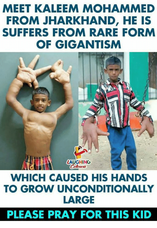 Indianpeoplefacebook, Rare, and Mohammed: MEET KALEEM MOHAMMED  FROM JHARKHAND, HE IS  SUFFERS FROM RARE FORM  OF GIGANTISM  LAUGHINC  WHICH CAUSED HIS HANDS  TO GROW UNCONDITIONALLY  LARGE  PLEASE PRAY FOR THIS KID
