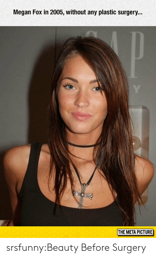 plastic surgery: Megan Fox in 2005, without any plastic surgery...  THE META PICTURE srsfunny:Beauty Before Surgery