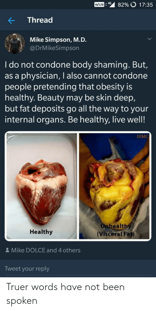 obesity: Mom : 49  82% o 17:35  Thread  Mike Simpson, M.D.  @DrMikeSimpson  I do not condone body shaming. But,  as a physician, I also cannot condone  people pretending that obesity is  healthy. Beauty may be skin deep,  but fat deposits go all the way to your  internal organs. Be healthy, live well!  IEMC  ealth  Healthy  (Visceral Fat)  & Mike DOLCE and 4 others  Tweet your reply Truer words have not been spoken