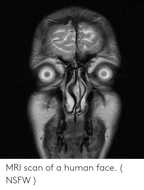 mri: MRI scan of a human face. ( NSFW )