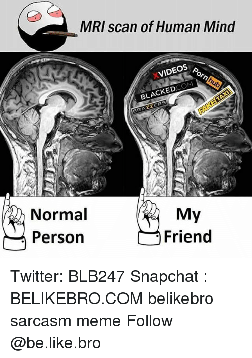 Be Like, Meme, and Memes: MRI scan of Human Mind  XVIDEOS  BLACKEDCOM  RAZZER  Normal  Person  My  Friend Twitter: BLB247 Snapchat : BELIKEBRO.COM belikebro sarcasm meme Follow @be.like.bro