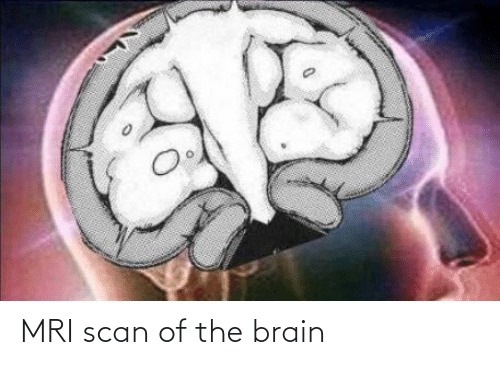 mri: MRI scan of the brain
