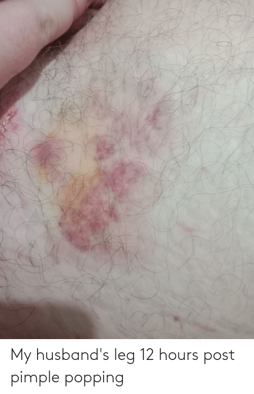 husbands: My husband's leg 12 hours post pimple popping