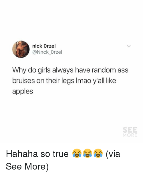 Ass, Girls, and Memes: nlck Orzel  @Nnck Orzel  Why do girls always have random ass  bruises on their legs Imao y'all like  apples  SEE  MORE Hahaha so true 😂😂😂  (via See More)