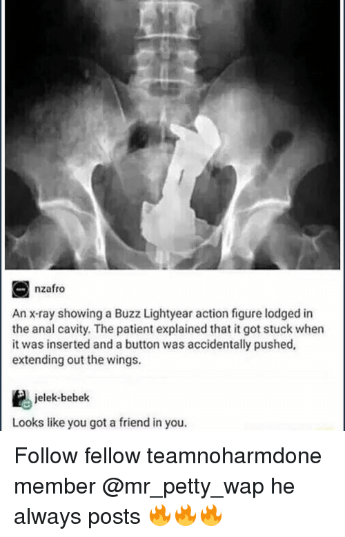 Action Figures: nzafro  An x-ray showing a Buzz Lightyear action figure lodged in  the anal cavity. The patient explained that it got stuck when  it was inserted and a button was accidentally pushed,  extending out the wings.  jelek bebek  Looks like you got a friend in you. Follow fellow teamnoharmdone member @mr_petty_wap he always posts 🔥🔥🔥