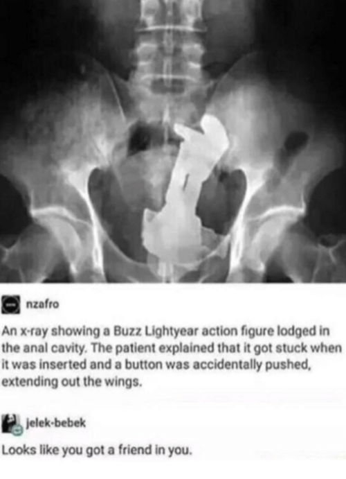 lightyear: nzafro  An x-ray showing a Buzz Lightyear action figure lodged in  the anal cavity. The patient explained that it got stuck when  it was inserted and a button was accidentally pushed  extending out the wings.  jelek-bebek  Looks like you got a friend in you.