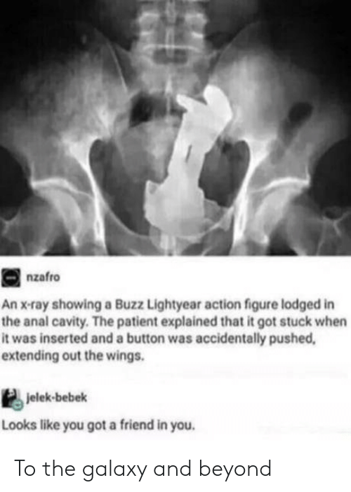 lightyear: nzafro  An x-ray showing a Buzz Lightyear action figure lodged in  the anal cavity. The patient explained that it got stuck when  it was inserted and a button was accidentally pushed  extending out the wings.  jelek-bebek  Looks like you got a friend in you To the galaxy and beyond