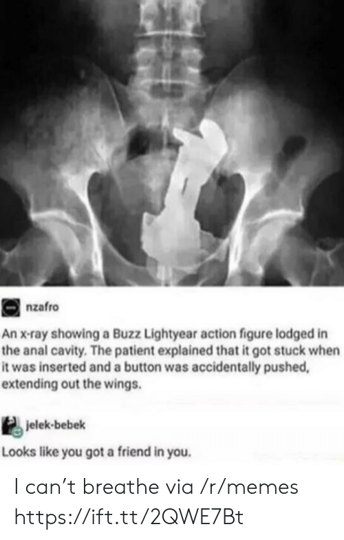lightyear: nzafro  An x-ray showing a Buzz Lightyear action figure lodged in  the anal cavity. The patient explained that it got stuck when  it was inserted and a button was accidentally pushed,  extending out the wings.  jelek-bebek  Looks like you got a friend in you. I can't breathe via /r/memes https://ift.tt/2QWE7Bt
