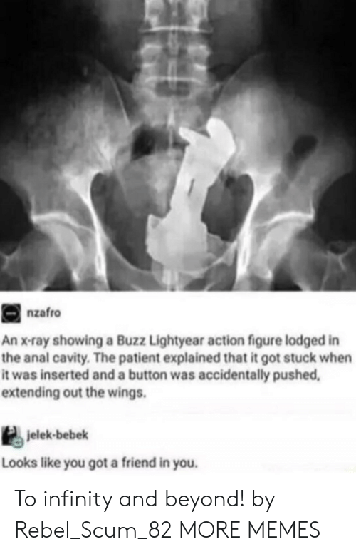 lightyear: nzafro  An x-ray showing a Buzz Lightyear action figure lodged in  the anal cavity. The patient explained that it got stuck when  it was inserted and a button was accidentally pushed  extending out the wings.  jelek-bebek  Looks like you got a friend in you. To infinity and beyond! by Rebel_Scum_82 MORE MEMES