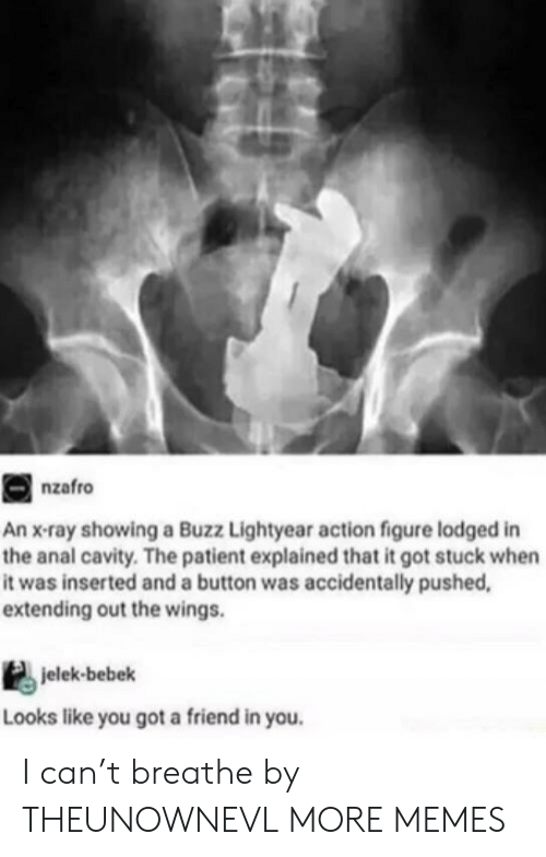lightyear: nzafro  An x-ray showing a Buzz Lightyear action figure lodged in  the anal cavity. The patient explained that it got stuck when  it was inserted and a button was accidentally pushed,  extending out the wings.  jelek-bebek  Looks like you got a friend in you. I can't breathe by THEUNOWNEVL MORE MEMES
