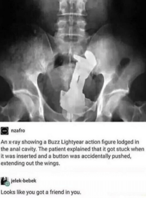 lightyear: nzafro  An x-ray showing a Buzz Lightyear action figure lodged in  the anal cavity. The patient explained that it got stuck when  it was inserted and a button was accidentally pushed,  extending out the wings.  jelek-bebek  Looks like you got a friend in you.
