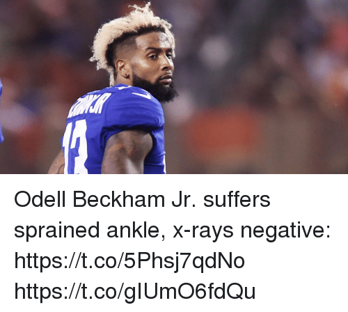 Memes, Odell Beckham Jr., and 🤖: Odell Beckham Jr. suffers sprained ankle, x-rays negative: https://t.co/5Phsj7qdNo https://t.co/gIUmO6fdQu