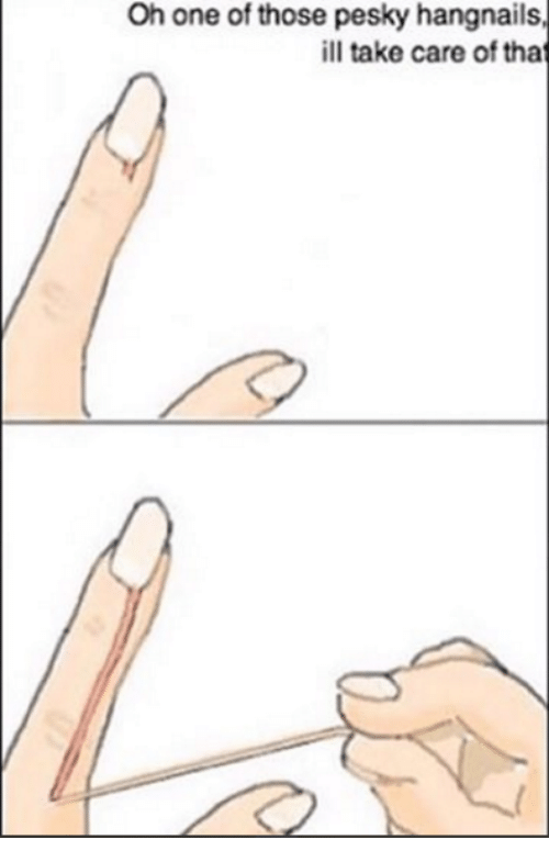 dank: Oh one of those pesky hangnails  ill take care of tha