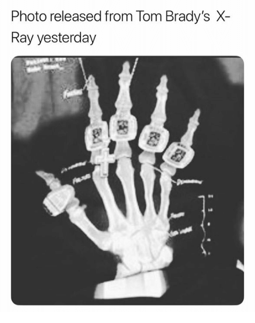 Ray, X-Ray, and Photo: Photo released from Tom Brady's X-  Ray yesterday