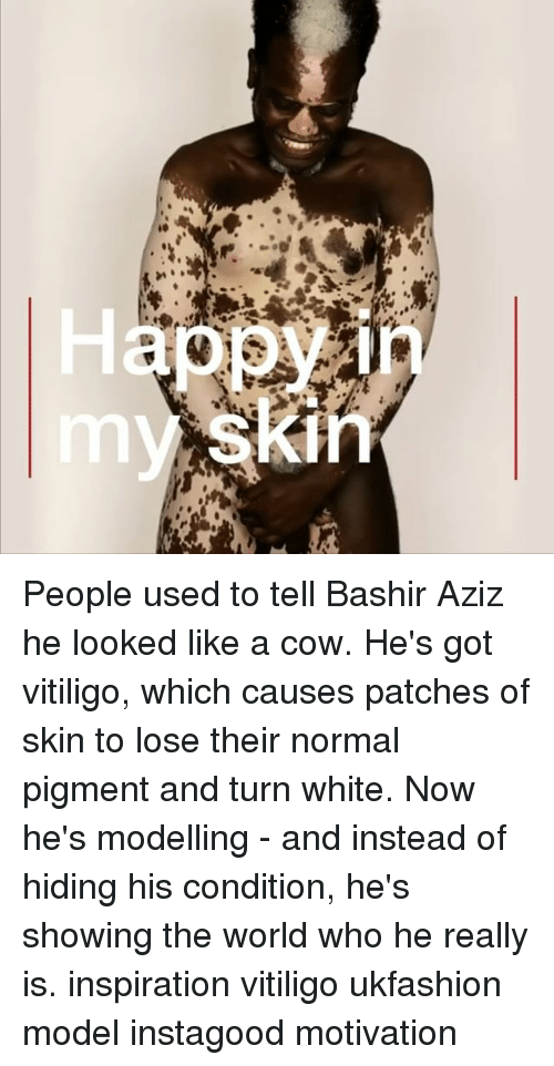 Memes, White, and World: ppy  skin People used to tell Bashir Aziz he looked like a cow. He's got vitiligo, which causes patches of skin to lose their normal pigment and turn white. Now he's modelling - and instead of hiding his condition, he's showing the world who he really is. inspiration vitiligo ukfashion model instagood motivation