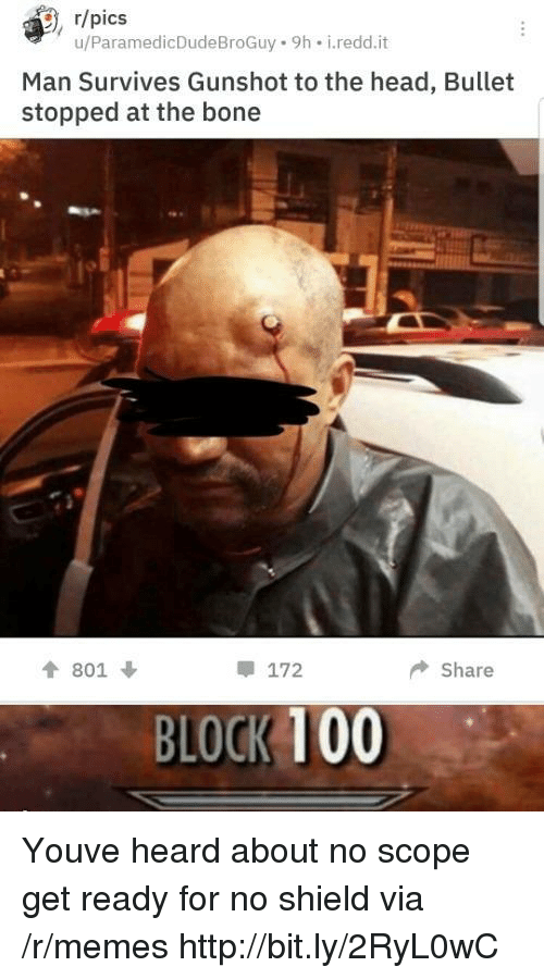 scope: , r/pics  u/ParamedicDudeBroGuy 9h i.redd.it  Man Survives Gunshot to the head, Bullet  stopped at the bone  會801 ↓  172  ◆ Share  BLOCK 100 Youve heard about no scope get ready for no shield via /r/memes http://bit.ly/2RyL0wC