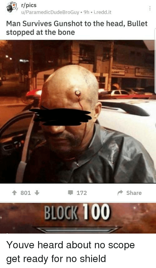 scope: , r/pics  u/ParamedicDudeBroGuy 9h i.redd.it  Man Survives Gunshot to the head, Bullet  stopped at the bone  會801 ↓  172  ◆ Share  BLOCK 100 Youve heard about no scope get ready for no shield