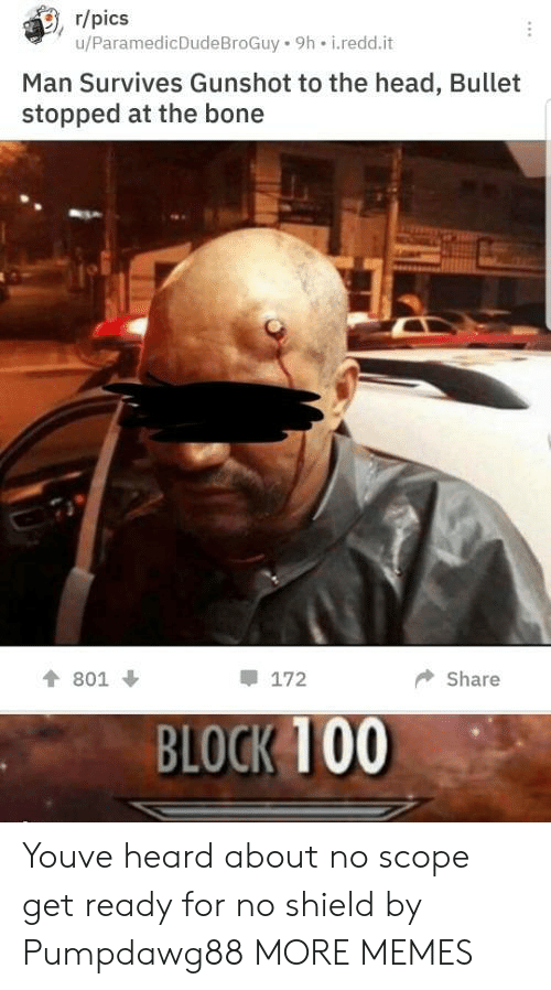 scope: , r/pics  u/ParamedicDudeBroGuy 9h i.redd.it  Man Survives Gunshot to the head, Bullet  stopped at the bone  會801 ↓  172  ◆ Share  BLOCK 100 Youve heard about no scope get ready for no shield by Pumpdawg88 MORE MEMES