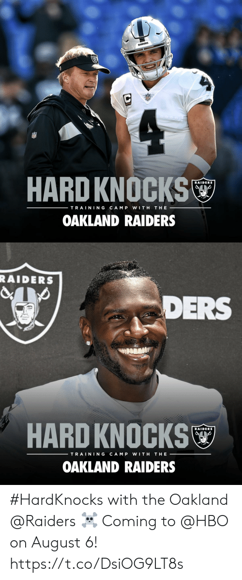 Oakland Raiders: RAIDERS  HARD KNOCKS  RAIDERS  TRAINING  CAM P  WITH  THE  OAKLAND RAIDERS   RAIDERS  DERS  EQUIPMEN  HARD KNOCKS  RAIDERS  TRAINING  CAM P  WITH  THE  OAKLAND RAIDERS #HardKnocks with the Oakland @Raiders ☠️  Coming to @HBO on August 6! https://t.co/DsiOG9LT8s