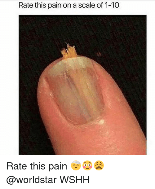 Memes, Worldstar, and Wshh: Rate this pain on a scale of 1-10 Rate this pain 🤕😳😫 @worldstar WSHH