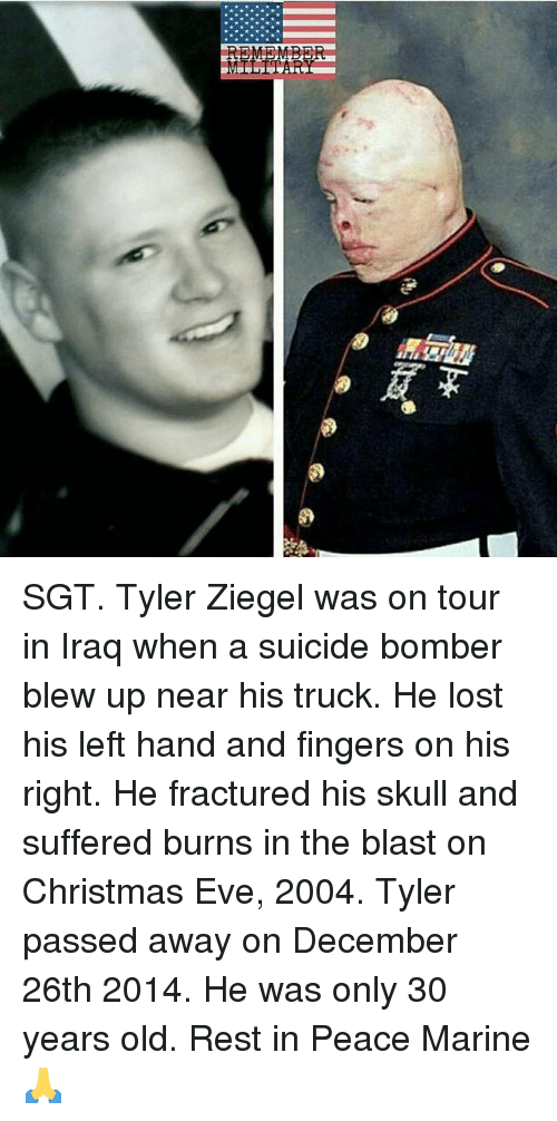 Christmas, Lost, and Iraq: REMEMB SGT. Tyler Ziegel was on tour in Iraq when a suicide bomber blew up near his truck. He lost his left hand and fingers on his right. He fractured his skull and suffered burns in the blast on Christmas Eve, 2004. Tyler passed away on December 26th 2014. He was only 30 years old. Rest in Peace Marine🙏