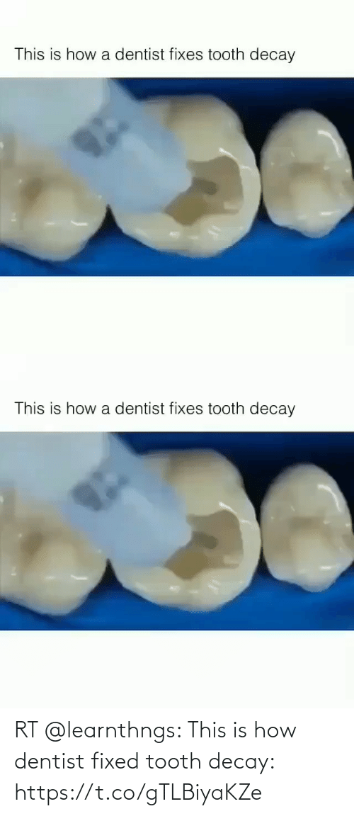 Fixed: RT @learnthngs: This is how dentist fixed tooth decay: https://t.co/gTLBiyaKZe