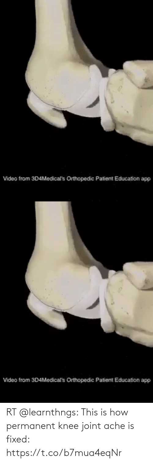 Fixed: RT @learnthngs: This is how permanent knee joint ache is fixed: https://t.co/b7mua4eqNr