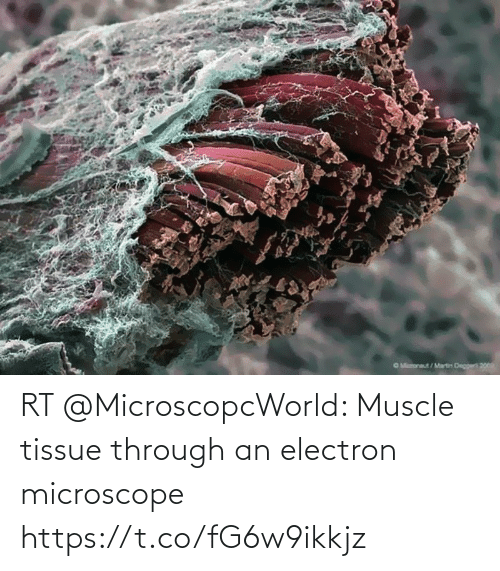 muscle: RT @MicroscopcWorld: Muscle tissue through an electron microscope https://t.co/fG6w9ikkjz